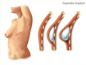 brystrekonstruktion-kraeftbehandling-udlandet